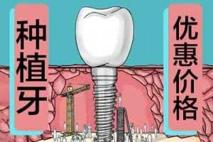 天津换一颗牙多少钱